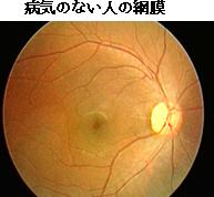 病気のない人の網膜