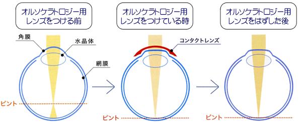 オルソケラトロジーによる視力矯正について