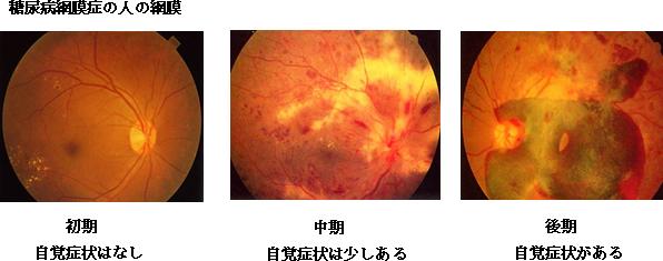 糖尿病網膜症の人の網膜